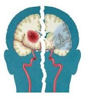 Obat Radang Otak Tradisional